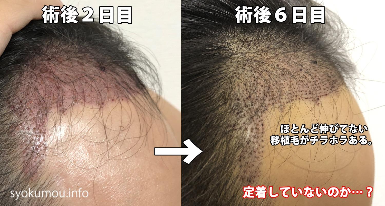 自毛植毛 術後6日目 術後2日目との右側比較