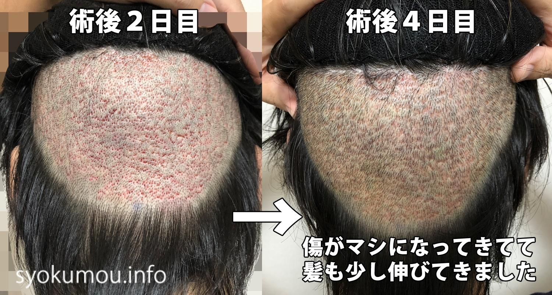 自毛植毛 術後4日目 術後2日目との後頭部比較