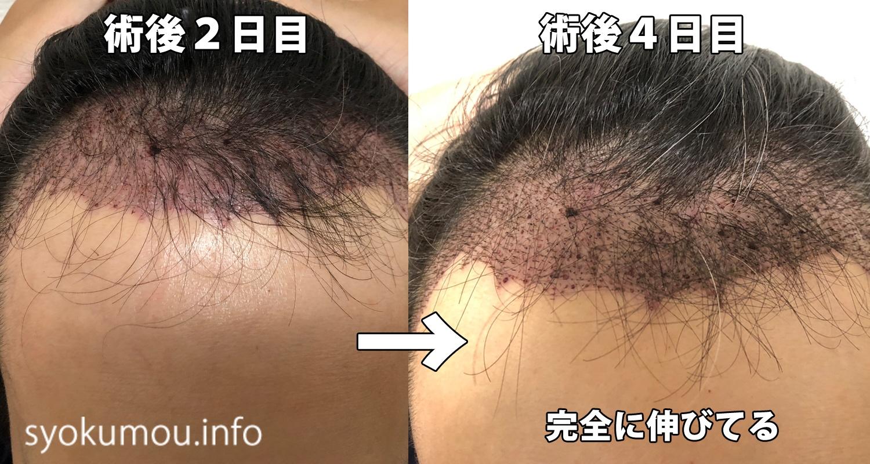 自毛植毛 術後4日目 術後2日目との正面比較