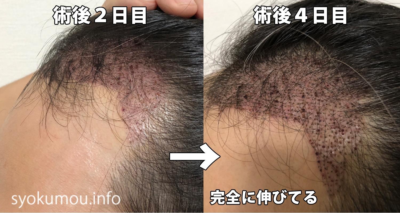自毛植毛 術後4日目 術後2日目との左側比較