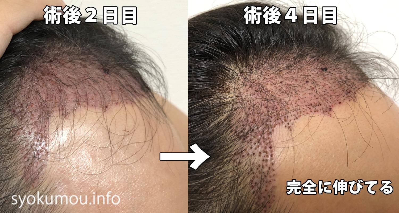自毛植毛 術後4日目 術後2日目との右側比較