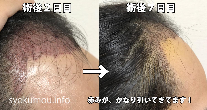 自毛植毛 術後7日目 術後2日目との右側比較