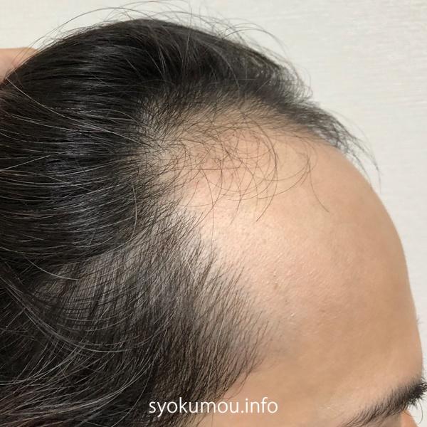 自毛植毛前 現在の状態 右側