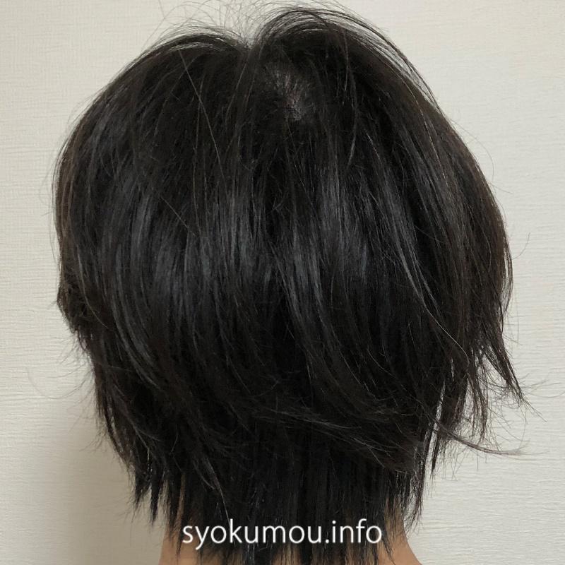自毛植毛 術後23日目 後頭部(カバーシート有り)