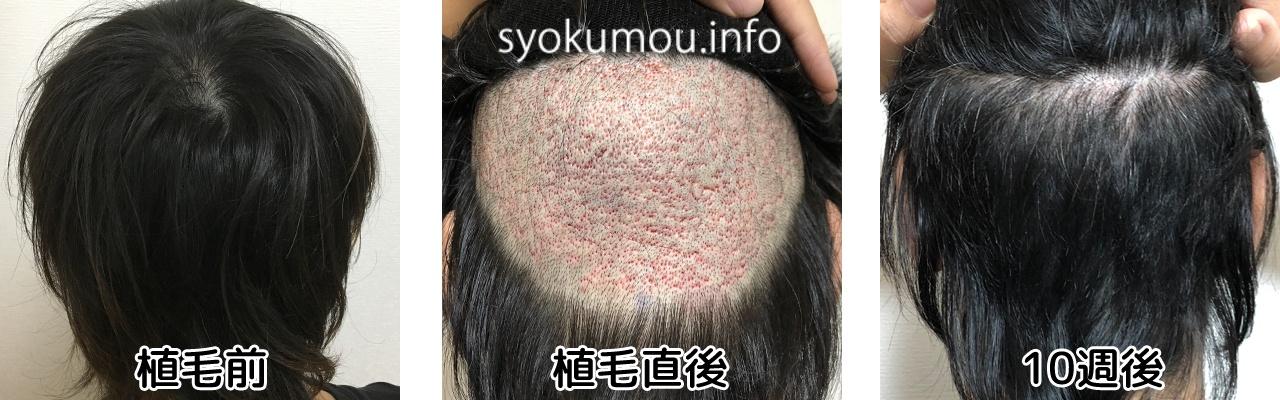 自毛手術前からの比較 10週間経過 後頭部